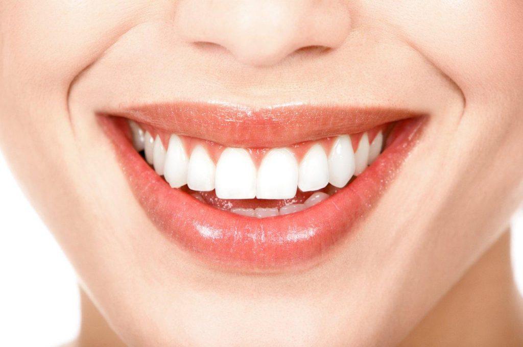 Dentes-brancos-1024x680.jpg