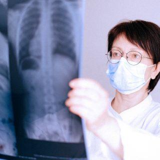 Pneumologista mulher com óculos e máscara para prevenir a transmissão do COVID-19, vendo o raio x do pulmão de um cliente
